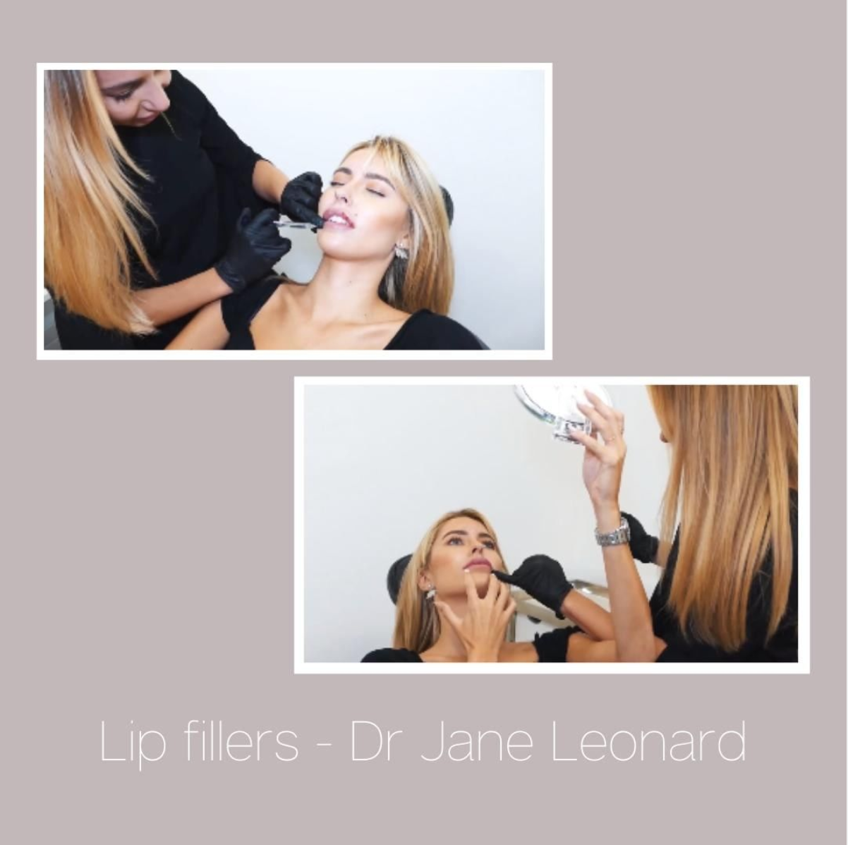 Dr Jane Before and afters | Beyond MediSpa