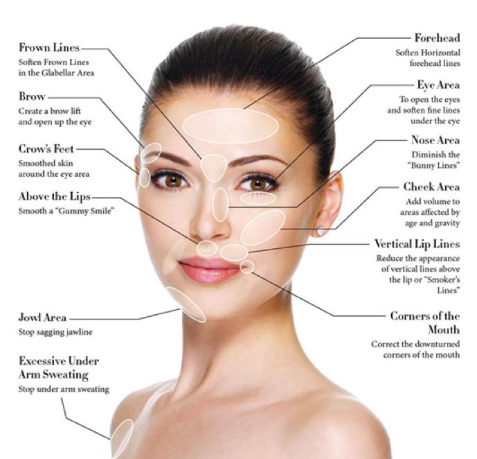 Anti wrinkle treatment areas