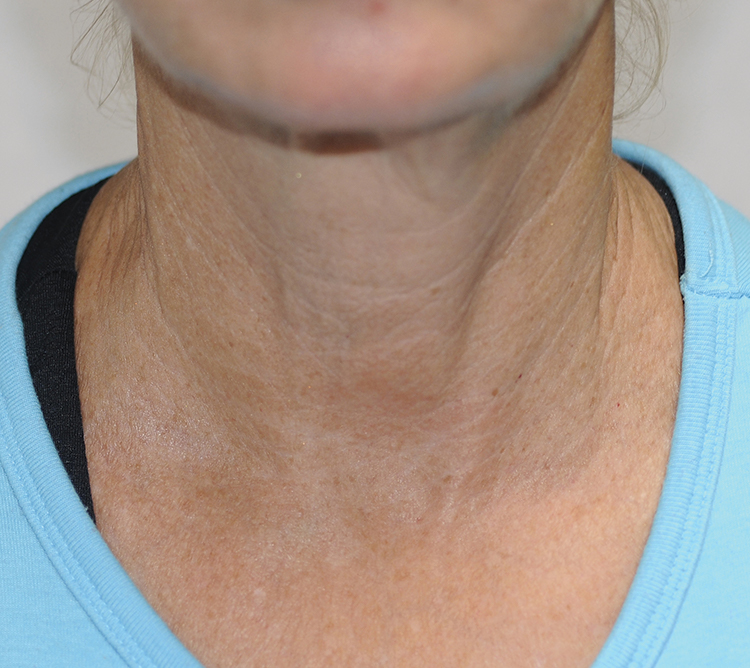 BTL Elite neck after | Skin Tightening