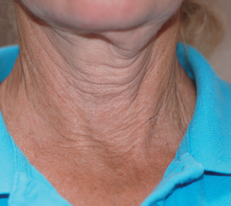 BTL Elite neck before | Neck Tightening London