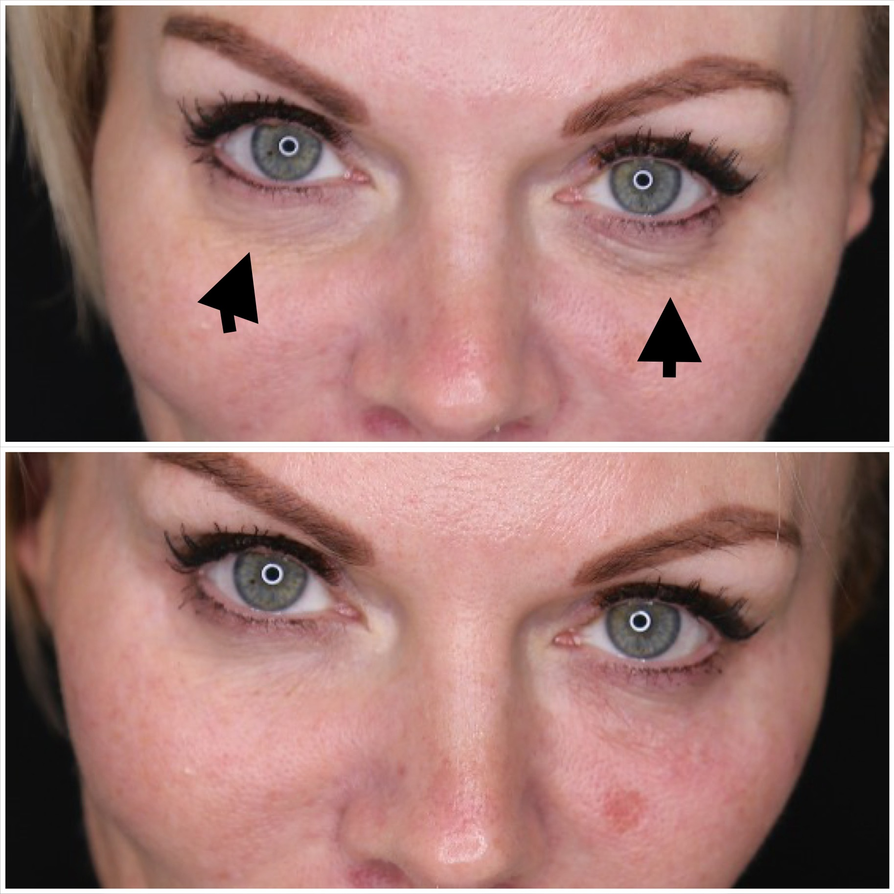 Under Eye Fillers | Before & After | Beyond MediSpa