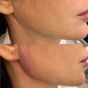Cheek Fillers Before and after | Dr Mohsin | Beyond MediSpa