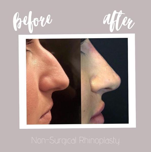 Non surgical rhinoplasty   liquid nose job   Beyond MediSpa