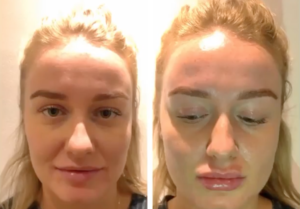 Dr Ireny Before And After | Beyond MediSpa