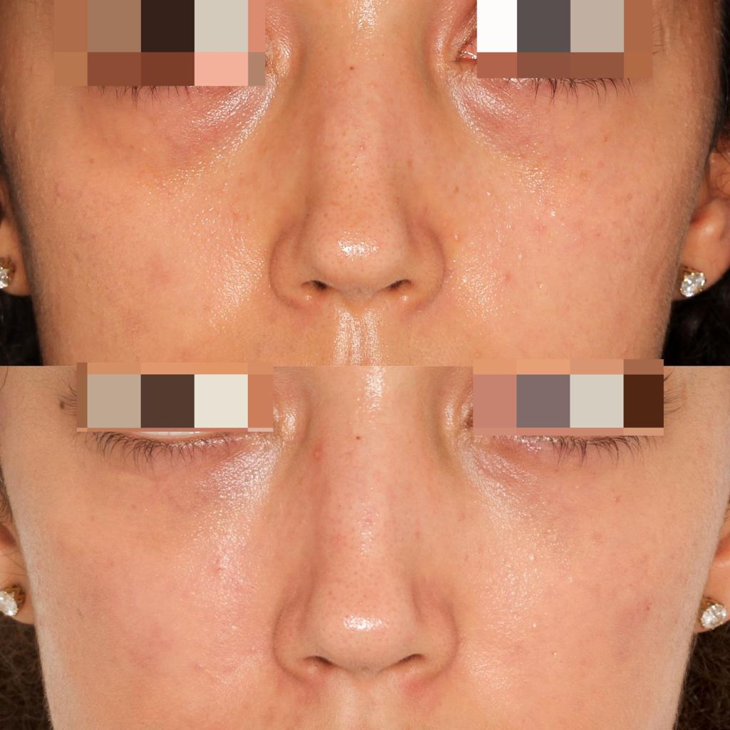 Under eye fillers | Before and after | Beyond medispa