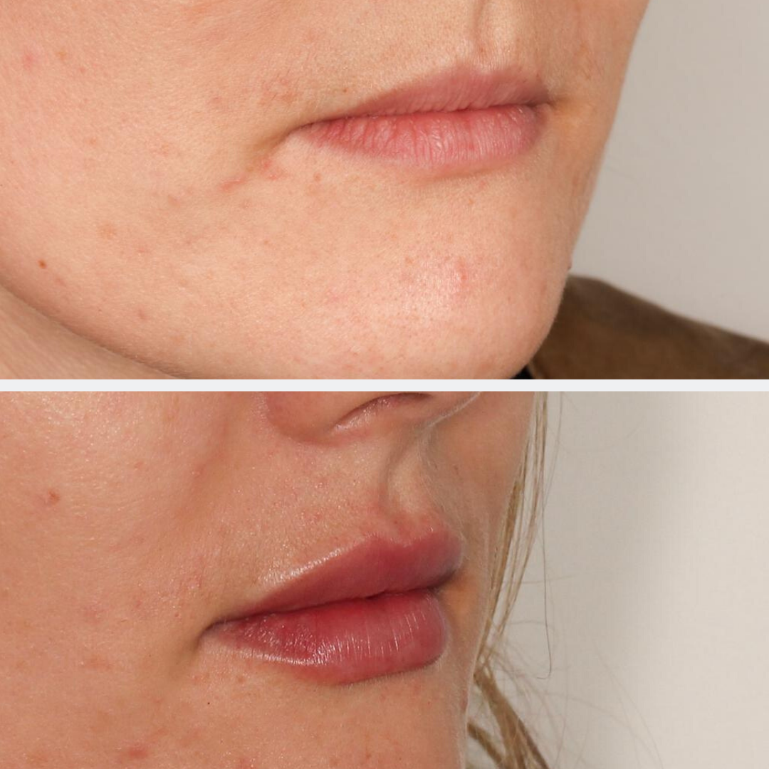 Lip Fillers | Before and after | Beyond Medispa