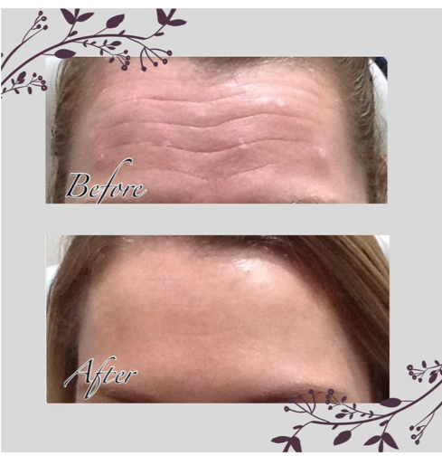 Anti wrinkle injections | Beyond Medispa
