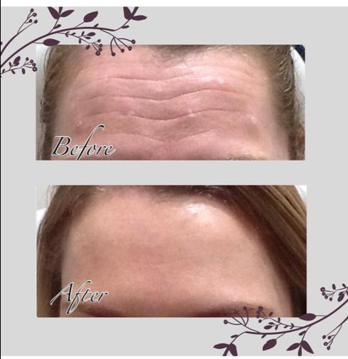 Anti wrinkle injections   Beyond Medispa