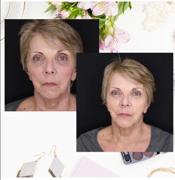Facial fillers   Beyond Medispa