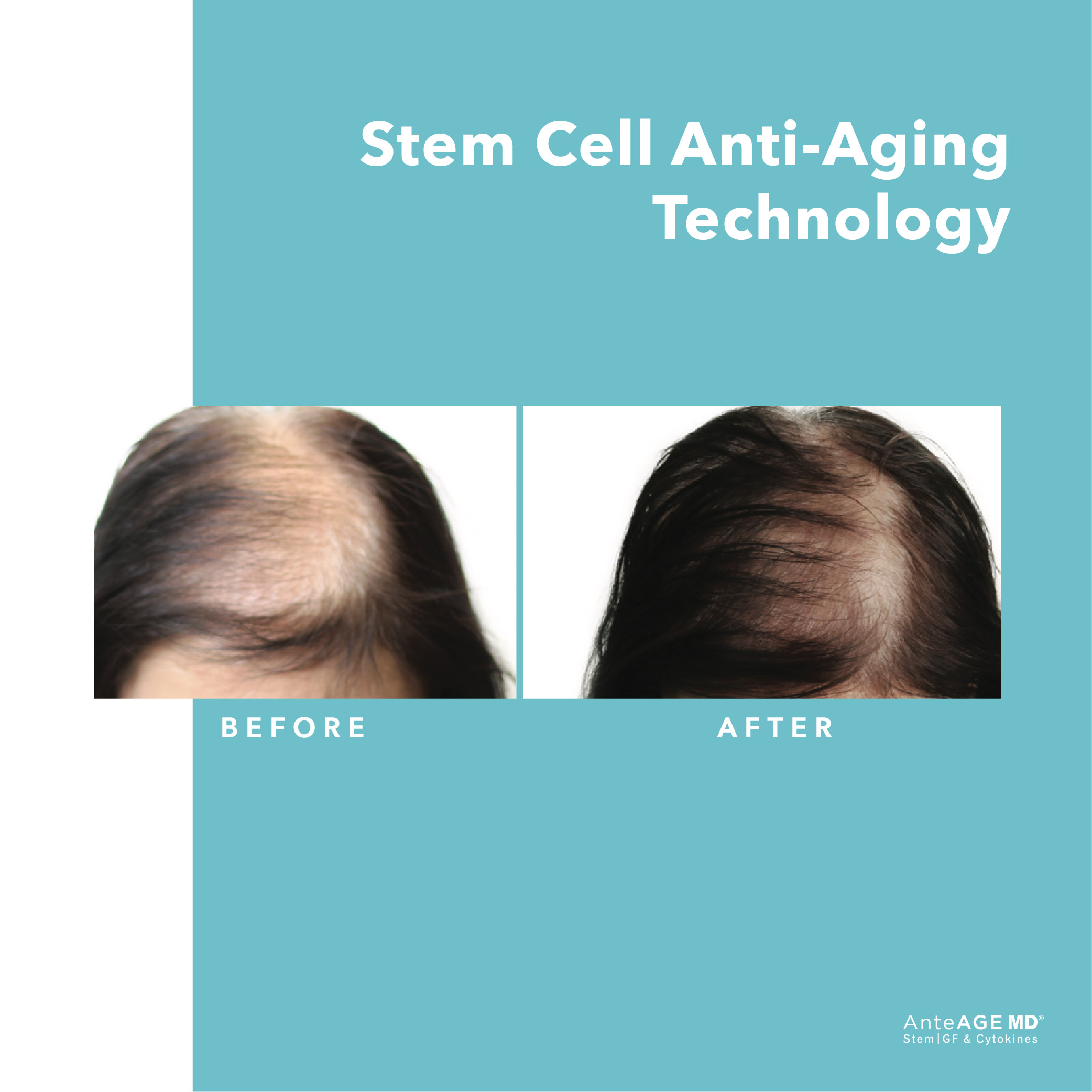 AnteAGE MD® Hair Growth Factor Solution | London | Beyond Medispa